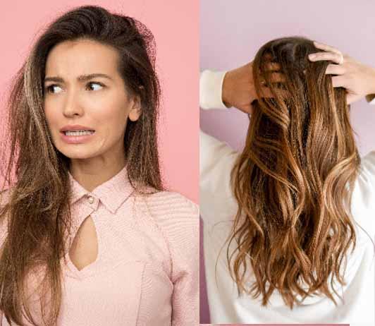 बालो का झड़ना कैसे रोंके- अचूक उपाय