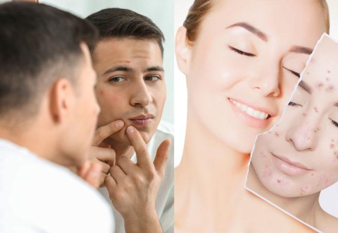 5 Solid Tips रातों रात चेहरे पर कील मुँहासे से छुटकारा